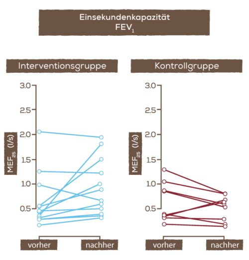Grafik_ZF_Einsekundenkap.